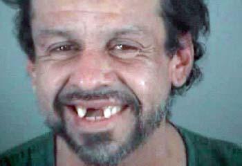 Name:  Teeth.jpg Views: 262 Size:  28.3 KB